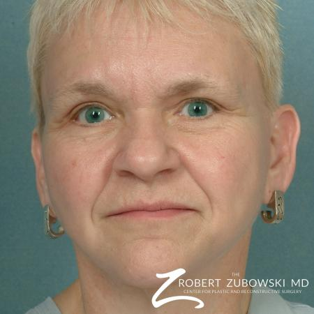 Facelift: Patient 14 - After Image 1