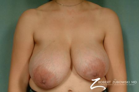 Breast Reduction: Patient 22 - Before Image 1