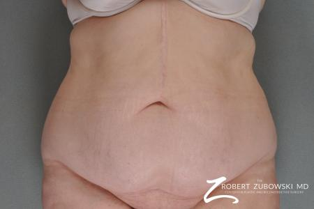 Tummy Tuck: Patient 11 - Before Image