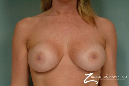 Breast Augmentation: Patient 31 - Before Image 1