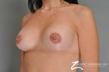 Breast Lift And Augmentation: Patient 5 - After Image 2