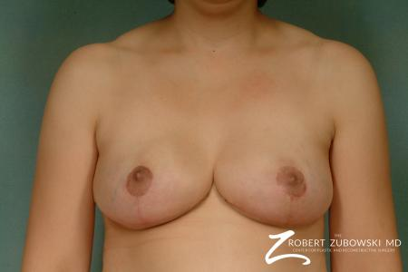 Breast Reduction: Patient 22 - After Image 1
