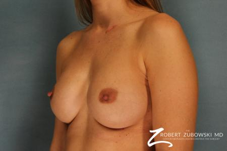 Breast Augmentation: Patient 14 - After Image 2