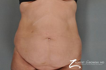 Tummy Tuck: Patient 7 - Before Image 1