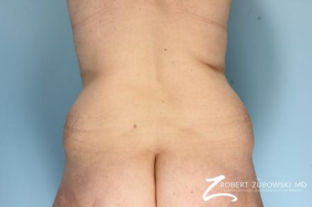 Body Lift: Patient 9 - Before and After Image 3