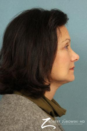 Facelift: Patient 22 - After Image 2