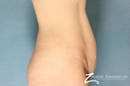 Tummy Tuck: Patient 12 - Before and After Image 2
