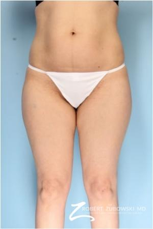 Liposuction: Patient 42 - Before Image