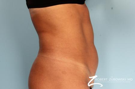 CoolSculpting®: Patient 3 - Before and After Image 2