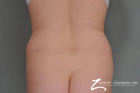Liposuction: Patient 8 - Before Image