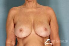 Breast Reduction: Patient 13 - After Image