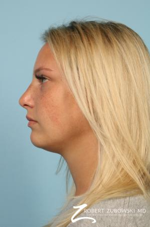 Rhinoplasty: Patient 23 - After Image 2