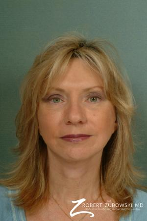 Facelift: Patient 13 - After Image 1
