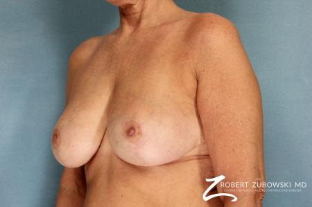 Breast Reduction: Patient 13 - After Image 2