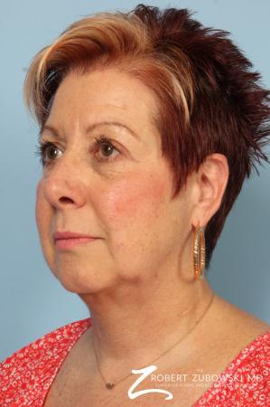 Blepharoplasty: Patient 13 - After Image 2