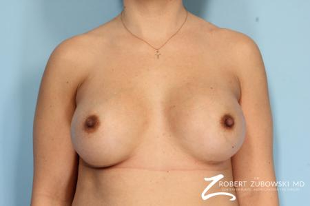 Breast Augmentation: Patient 35 - After Image 1