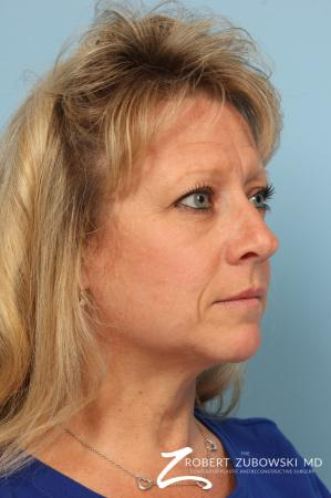 Blepharoplasty: Patient 28 - Before and After Image 2