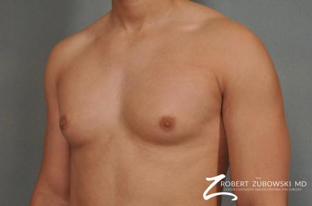 Gynecomastia: Patient 3 - Before and After Image 2