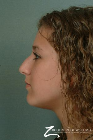 Rhinoplasty: Patient 12 - Before and After Image 2