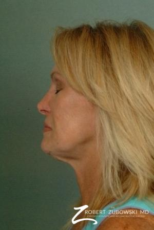 Facelift: Patient 12 - Before and After Image 2