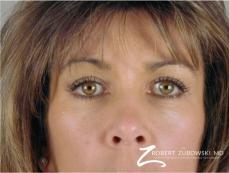 Blepharoplasty: Patient 2 - After Image