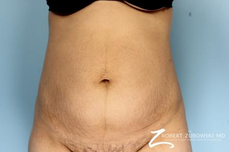 Liposuction: Patient 44 - Before Image