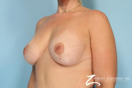 Breast Lift And Augmentation: Patient 19 - After Image 3