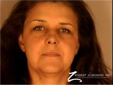 Brow Lift: Patient 3 - Before Image