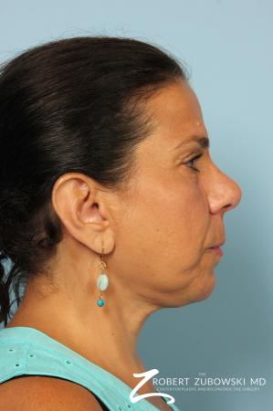Neck Lift: Patient 9 - After Image 2