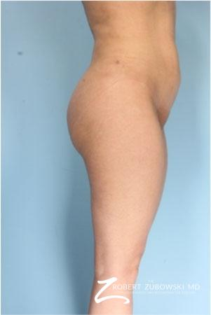 Butt Augmentation: Patient 1 - After Image