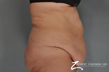Tummy Tuck: Patient 7 - Before and After Image 2
