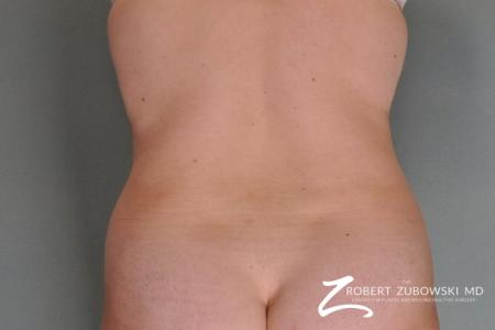 Liposuction: Patient 24 - Before Image 2