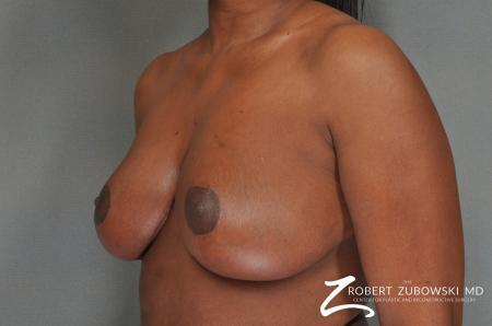 Breast Reduction: Patient 17 - After Image 2