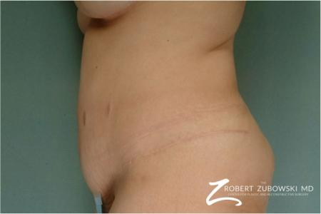 Tummy Tuck: Patient 1 - After Image 2