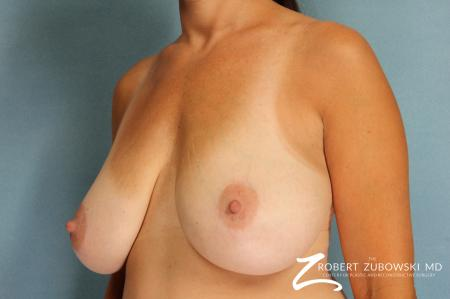 Breast Lift And Augmentation: Patient 8 - Before and After Image 2
