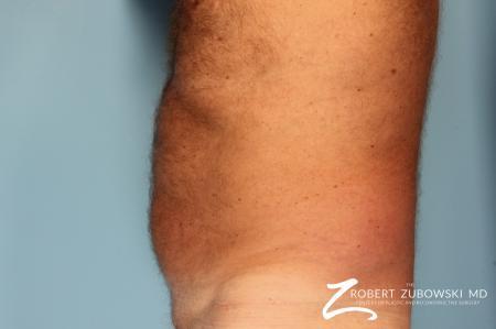 Liposuction: Patient 18 - Before Image 2
