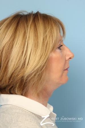 Facelift: Patient 20 - After Image 2
