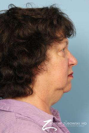 Facelift: Patient 19 - Before and After Image 2