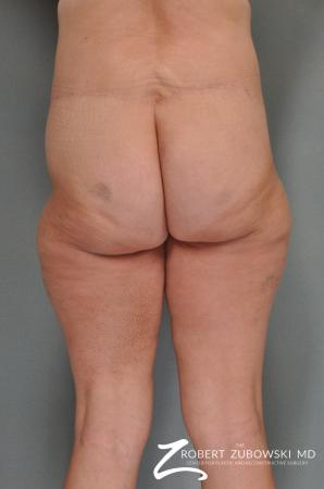 Body Lift: Patient 1 - After Image 2