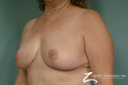 Breast Reduction: Patient 20 - After Image 2