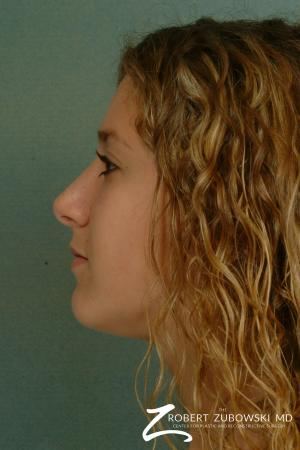 Rhinoplasty: Patient 12 - After Image 2