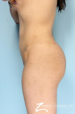Butt Augmentation: Patient 4 - After Image 2