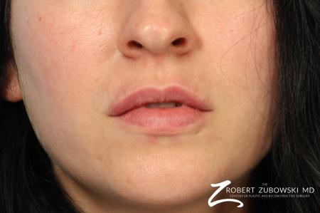Fillers: Patient 1 - After Image 1