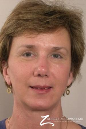 Facelift: Patient 8 - After Image 1