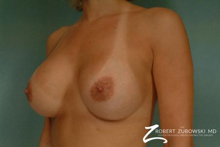 Breast Augmentation: Patient 26 - After Image 1