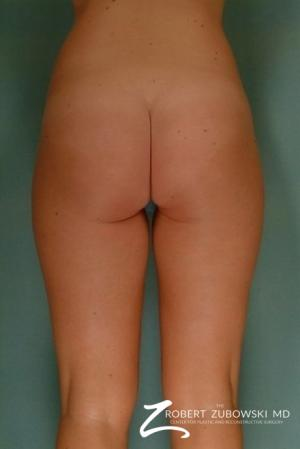 Liposuction: Patient 7 - Before and After Image 2