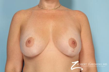 Breast Lift And Augmentation: Patient 19 - After Image 1