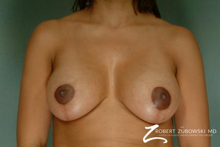 Breast Lift And Augmentation: Patient 13 - After Image 1