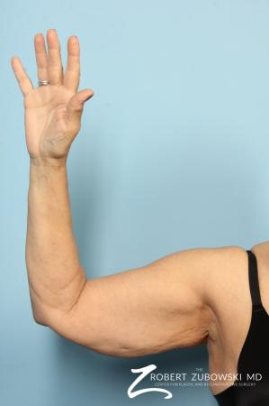 Arm Lift: Patient 5 - Before Image 2