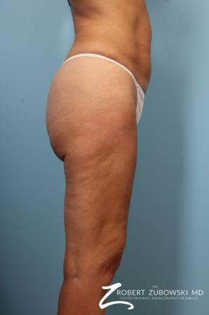 Cellulaze: Patient 1 - After Image 3